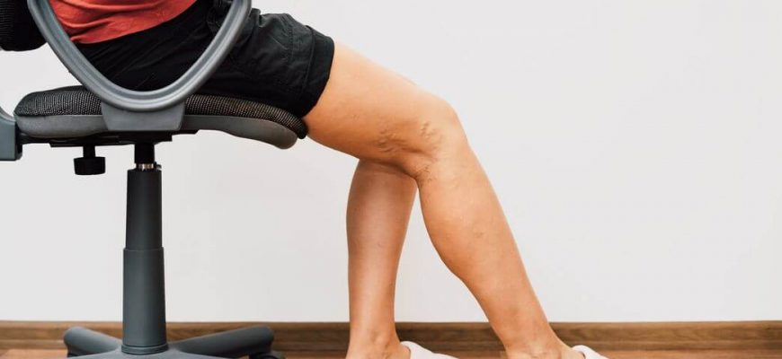 How to Treat Blood Clot Symptoms in the Legs?